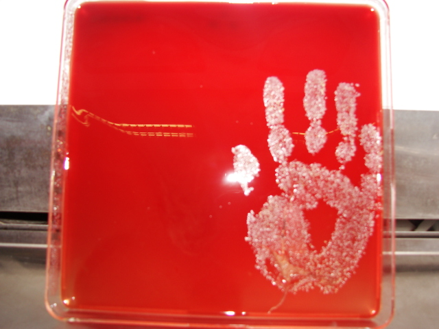 They're everywhere: micro-organisms from a typical hand print as revealed by 'blood agar', a substance used by scientists to detect and distinguish pathogens